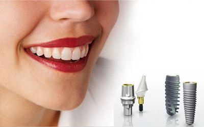 Ưu điểm khi trồng răng implant